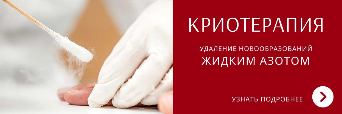 Удаление жидким азотом в Ярославле